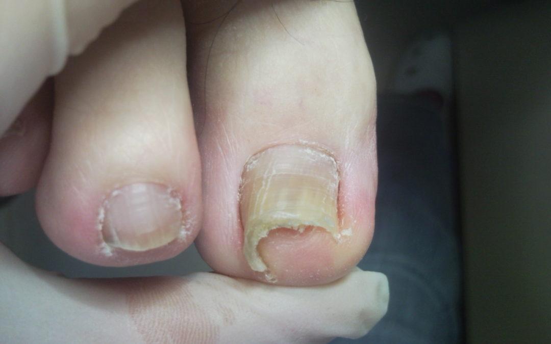 Wrastające paznokcie – uporczywy problem? Mamy sposób jak się go pozbyć raz na zawsze