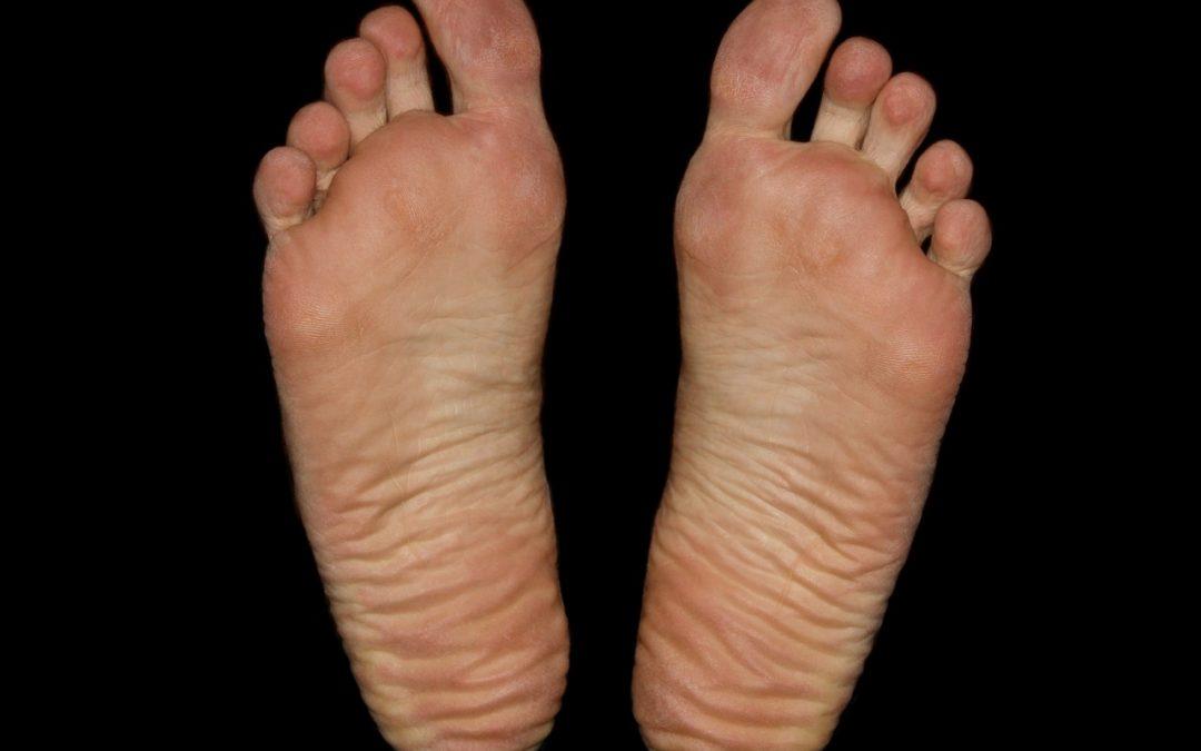 Masz kurzajki na stopie? Sprawdź, jak możesz je wyleczyć